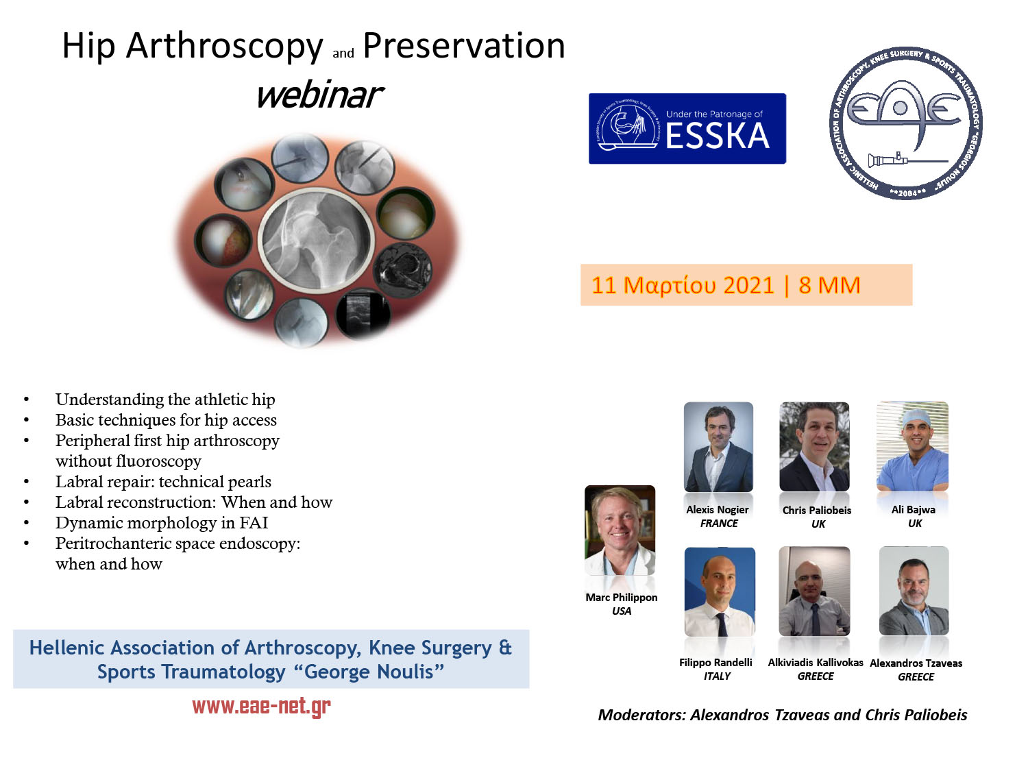 Hip Arthroscopy and Preservation